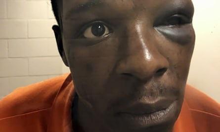 Black men still getting beat down by police
